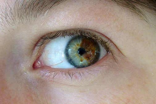 Очі різного кольору