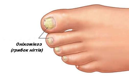 оніхомікоз - грибок нігтів